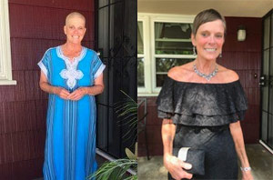 Female pancreatic cancer survivor with shaved head during treatment and with hair afterward.