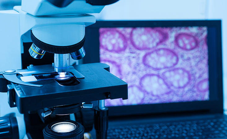 Microscope in pancreatic cancer research lab analyzes tissue sample